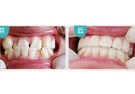 北京丽贝佳牙齿矫正案例