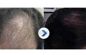 大家是不是很好奇,为何头发种植术前必须要进行毛囊检测?
