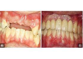 深圳拜尔齿科种植牙案例