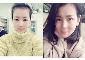 深圳仁安雅双眼皮手术案例