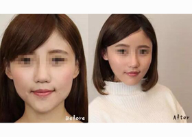 深圳仁安雅瘦脸针案例