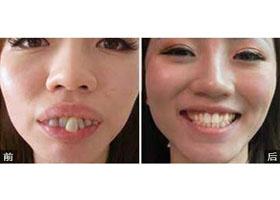 深圳拜尔齿科牙齿矫正案例