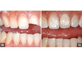 深圳拜尔齿科牙齿修复案例