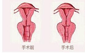阴道紧缩有啥不一样的地方吗?