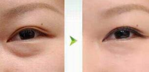 珠海市中西医结合医院激光祛眼袋案例