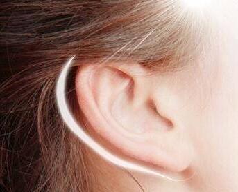 招风耳整形手术创伤大吗?