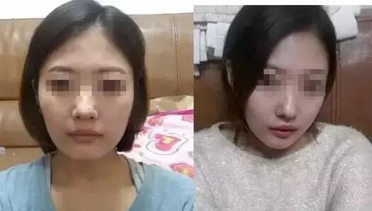 注射瘦脸针出现凹陷跟会人有关?