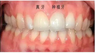 北京亮美种植牙案例