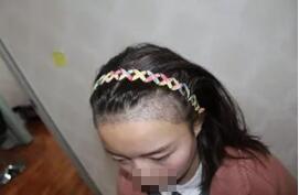 广州雅度发际线种植案例