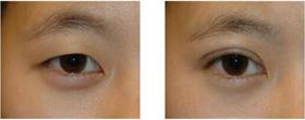 中山市小榄人民医院双眼皮手术案例