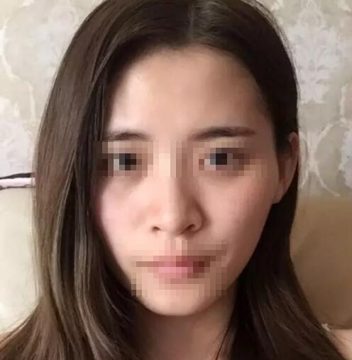 深圳爱尚美隆鼻手术案例