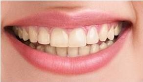 北京亮美牙齿修复案例