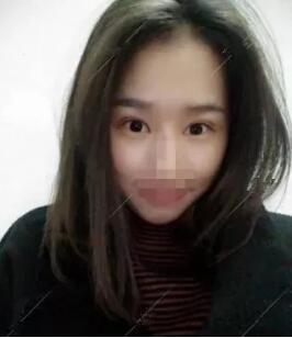 深圳爱尚美双眼皮手术案例
