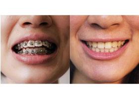 北医三院上地门诊牙齿矫正案例