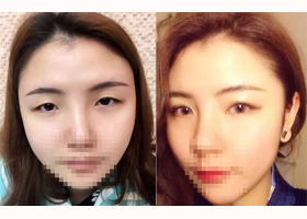 惠州惠城伊美韩式双眼皮案例