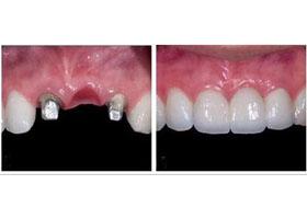 北医三院上地门诊种植牙案例