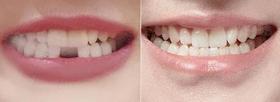 广州柏德口腔种植牙案例
