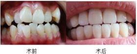 广州柏德口腔牙齿矫正案例