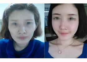 惠州惠城伊美肉毒素除皱案例