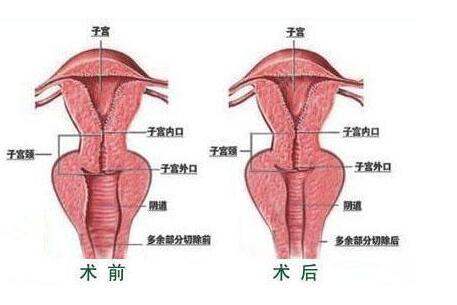 G点整形能让性生活快感来的加倍明显吗?
