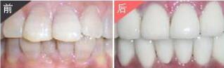 广州柏德口腔烤瓷牙案例