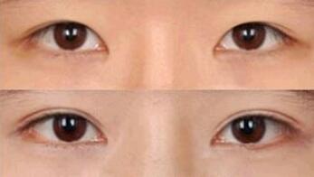 盐城美芭美学双眼皮手术案例