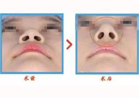 惠州惠城伊美注射隆鼻案例