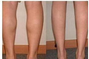 小腿吸脂术后会对影响走路吗?
