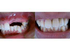 种植牙的组成和结构分别是什么?