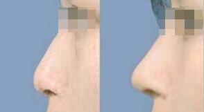重庆徐铎丽格隆鼻手术案例