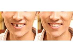 广州爱威白种植牙案例