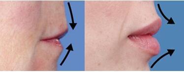 注射丰唇能影响日常进食吗?