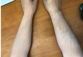 手臂脱毛什么时间做好呢?