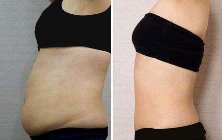 腰腹部吸脂会有一些轻微的损伤吗?