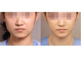 北京集美名媛瘦脸针案例