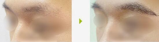 眉毛种植后要是疼了该怎么办?