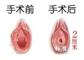 北京集美名媛处女膜修复案例
