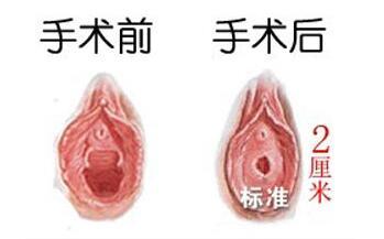 身患炎症的女性可以做处女膜修复手术吗?