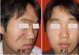 激光祛疤会复发吗?