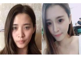 重庆蜜园隆鼻手术案例