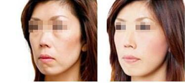 激光美容除皱会使皮肤变敏感么?