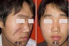 激光祛疤后伤口手术创口大吗?
