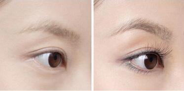 睫毛种植出现的不适应感要怎么应对呢?