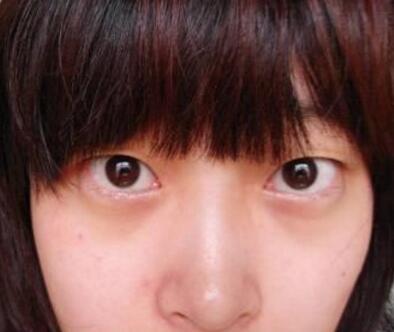 海南纯美芭比动感美眼术案例