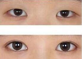 开眼角手术对眼睛伤害大不大呢?