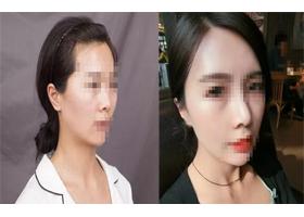 海南纯美隆鼻术案例