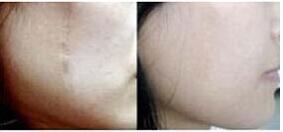 激光祛疤真的有用吗?