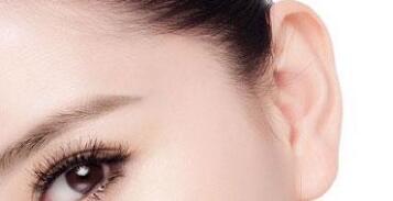 菜花耳整形是要切除变形的耳廓上部吗?