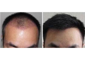 重庆莱森头发种植案例