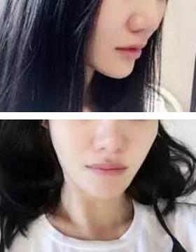 重庆珂琳雅假体隆鼻案例